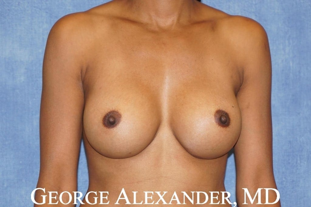 After Breast Augmentation 3