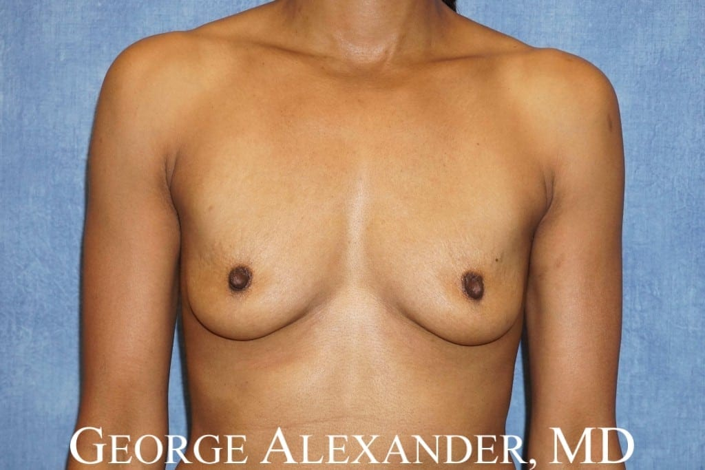 Before Breast Augmentation 3