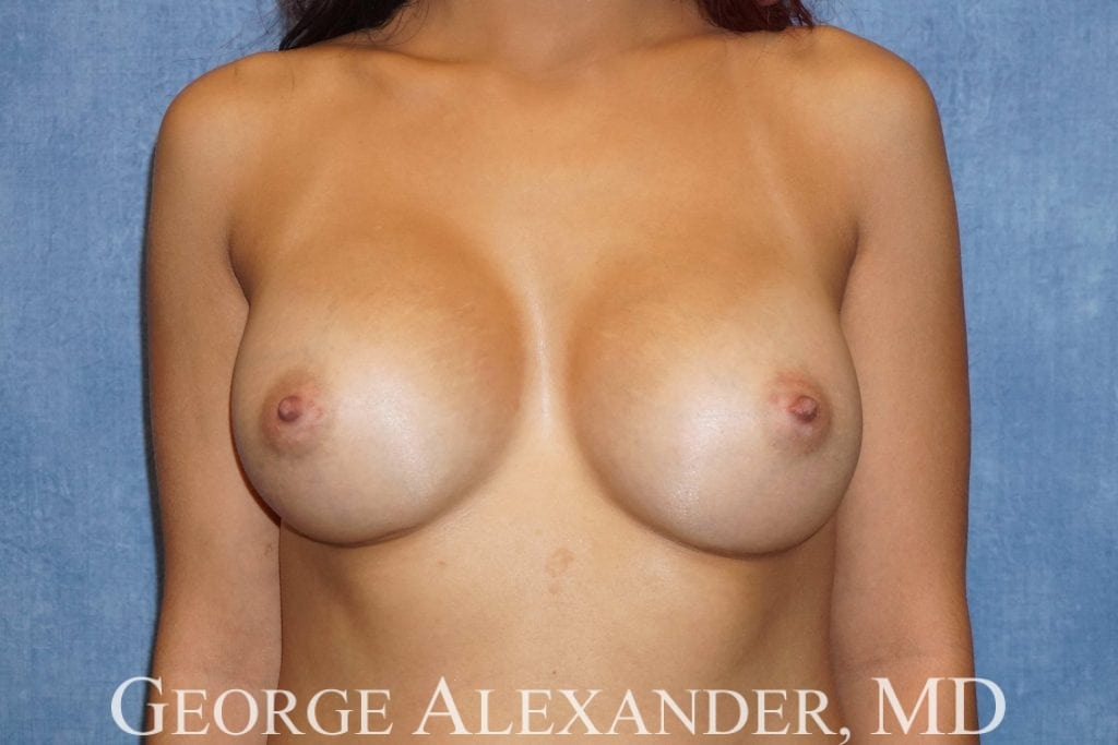 After  Breast Augmentation 2
