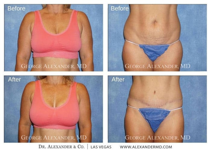 Alexander Mommy Makeover Patient Before and After photos