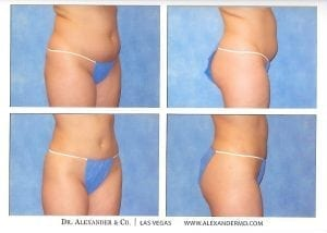 Liposuction before and after photo shows the improved body contour after removing stubborn fatty tissue