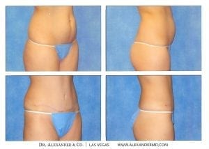 Tummy Tuck before and after photos show a flatter tummy after skin removal, muscle tightening and fatty tissue removal