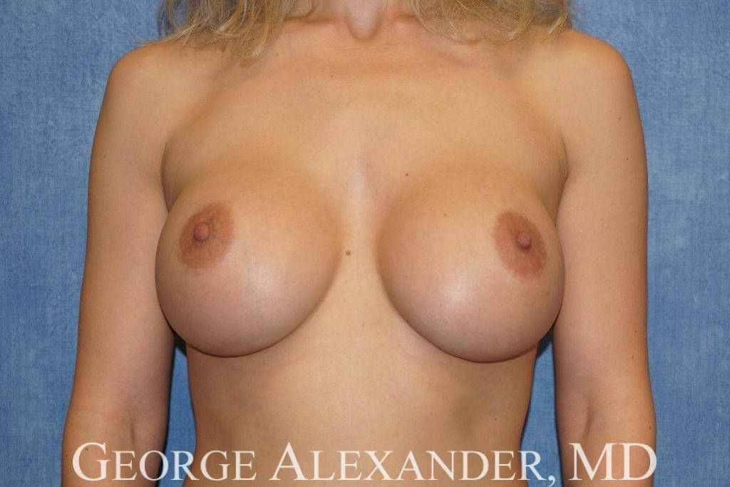 After  Breast Augmentation 1