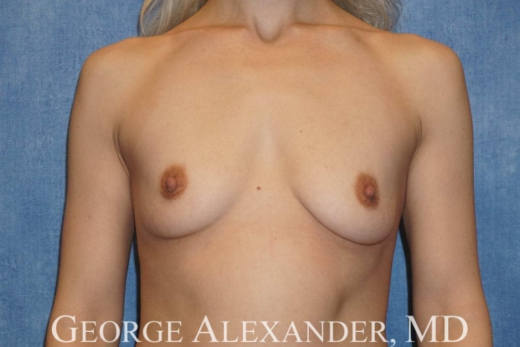 Before Breast Augmentation 1