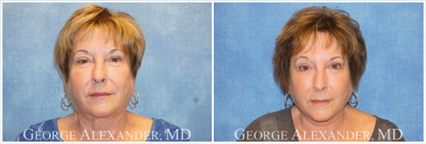 Before and after of a facelift patient