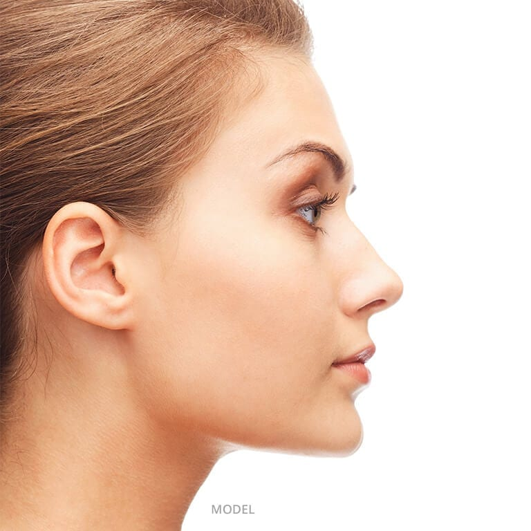 Rhinoplasty Model