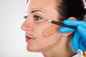 Close-up Of A Surgeon Correction Drawing Lines On Young Woman Face For Plastic Surgery