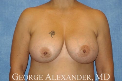 After  Breast Implant Exchange 3