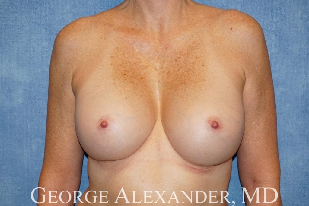 After  Breast Implant Exchange 2