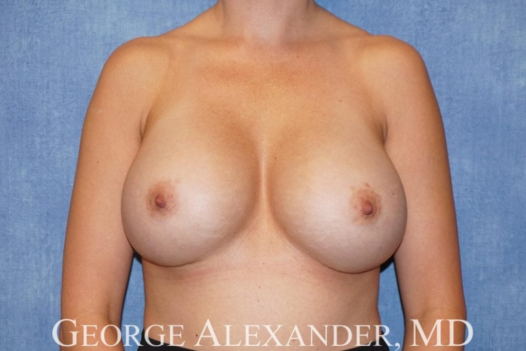 After  Breast Implant Exchange 1
