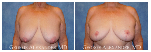 George Alexander Patient Image- Breast Lift before and after