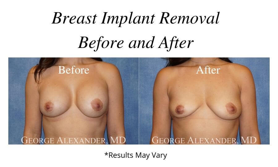 before and after breast implant removal