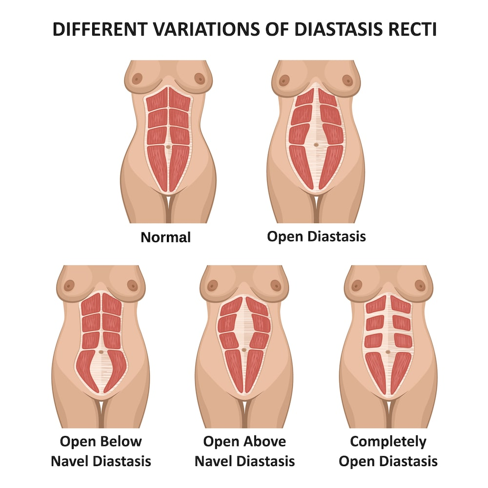 Women can have varying degrees of diastasis recti, or abdominal separation.