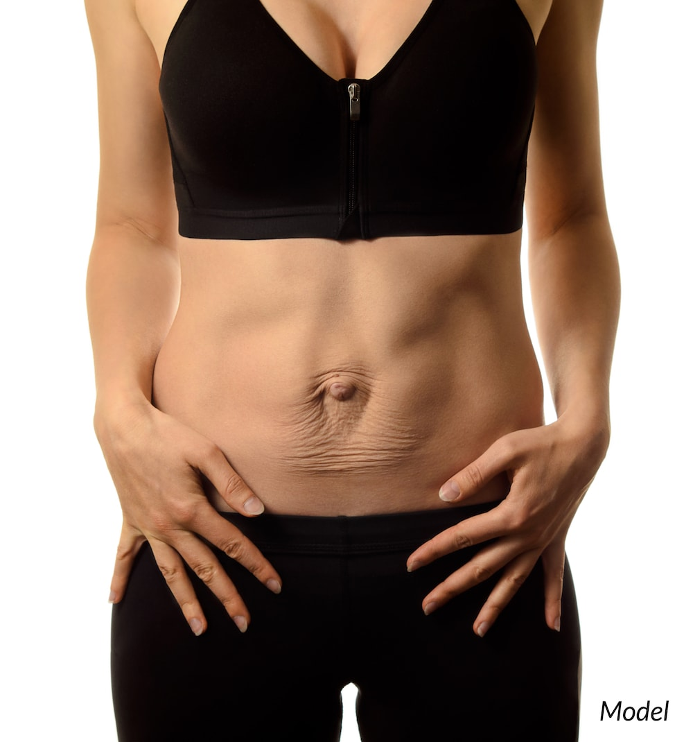 Diastasis recti results after pregnancy and leaves a pooched appearance.