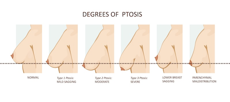 Degrees of breast ptosis