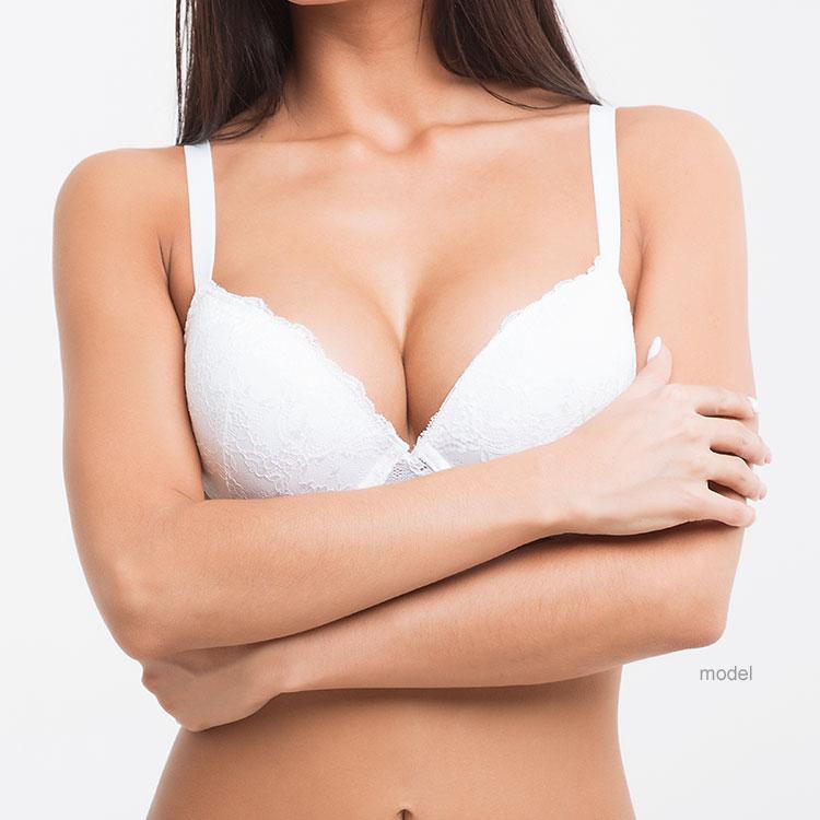 Breast Implant Exchange Model